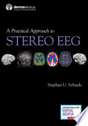 PRACTICAL APPROACH TO STEREO EEG.