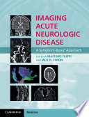 Imaging Acute Neurologic Disease Book