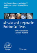 Massive and Irreparable Rotator Cuff Tears
