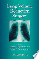 """""""Lung Volume Reduction Surgery"""" by Michael Argenziano, Mark E. Ginsburg"""