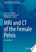 MRI and CT of the Female Pelvis