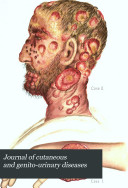 Journal of Cutaneous and Genito urinary Diseases
