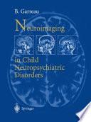 Neuroimaging in child neuropsychiatric disorders