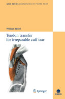 Tendon transfer for irreparable cuff tear