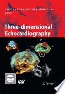 Three dimensional Echocardiography