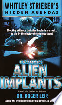 Casebook Alien Implants Book PDF