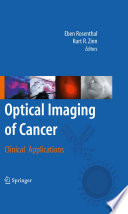 Optical Imaging Of Cancer Book PDF