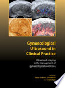 Gynaecological Ultrasound in Clinical Practice Book