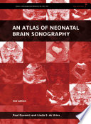 An Atlas of Neonatal Brain Sonography