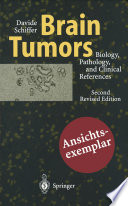 Brain Tumors Book