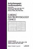 Arrhythmogenic Cardiomyopathy