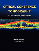Optical Coherence Tomography Book PDF