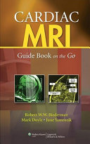 Cardiac MRI  Guide Book on the Go
