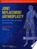 Joint Replacement Arthroplasty Book PDF