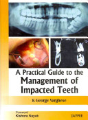 A Practical Guide to the Management of Impacted Teeth