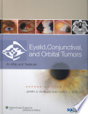 Eyelid  Conjunctival  and Orbital Tumors
