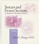 Smears and Frozen Sections in Surgical Neuropathology