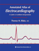 Annotated Atlas of Electrocardiography