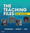 The Teaching Files  Brain and Spine Imaging E Book