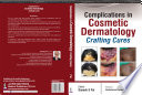 Complications In Cosmetic Dermatology