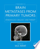 Brain Metastases from Primary Tumors, Volume 2