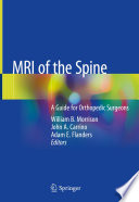 MRI of the Spine