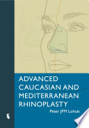 Advanced Caucasian And Mediterranean Rhinoplasty Book PDF