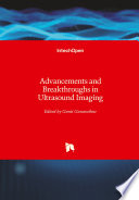 Advancements and Breakthroughs in Ultrasound Imaging