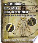 The Handbook of Hip   Knee Joint Replacement Book