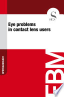 Eye problems in contact lens users Book