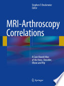 MRI Arthroscopy Correlations