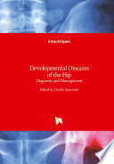 Developmental Diseases of the Hip