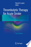 Thrombolytic Therapy for Acute Stroke Book