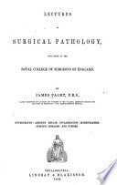 Lectures on Surgical Pathology, Delivered at the Royal College of Surgeons of England