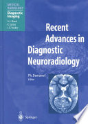 Recent Advances in Diagnostic Neuroradiology Book