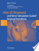 Atlas of Ultrasound  and Nerve Stimulation Guided Regional Anesthesia