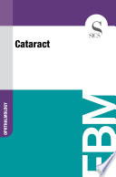 Cataract Book PDF