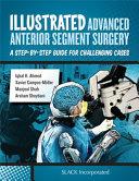 Illustrated Advanced Anterior Segment Surgery
