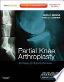 Partial Knee Arthroplasty E Book Book PDF