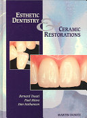 Esthetic Dentistry and Ceramic Restorations