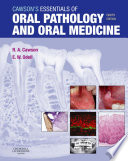 Cawson's Essentials of Oral Pathology and Oral Medicine E-Book