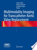 Multimodality Imaging for Transcatheter Aortic Valve Replacement Book