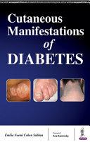 Cutaneous Manifestations of Diabetes