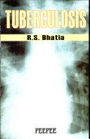 Tuberculosis Book