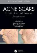 Acne Scars Pdf/ePub eBook