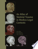 An Atlas of Skeletal Trauma in Medico Legal Contexts