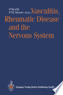 Vasculitis  Rheumatic Disease and the Nervous System