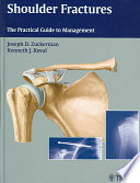 Shoulder Fractures Book PDF