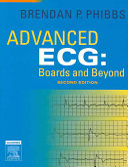 Advanced ECG