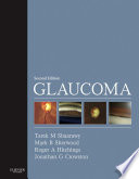Glaucoma E-Book